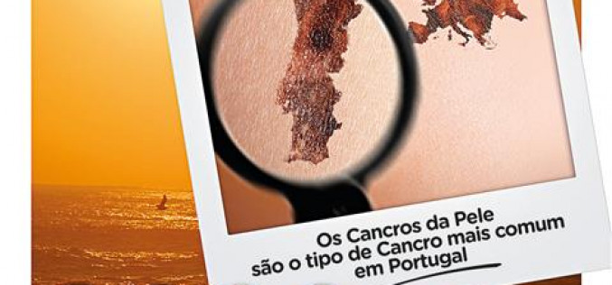 São Brás revisa la piel este verano